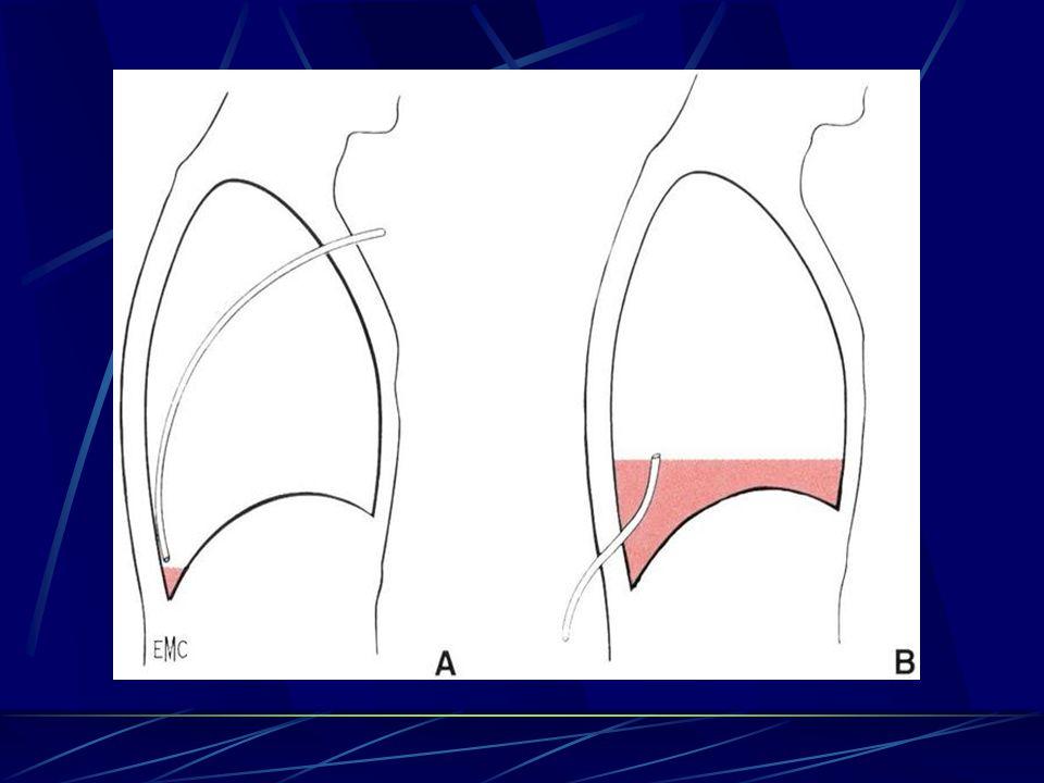 ETIOLOGIES DETRESSE RESPIRATOIRE AIGU TARDIVES OEDEME PULMONAIRE Œdème post pneumonectomie incidence : 10 15 % ( 2 5 % forme sévère) œdème de type lésionnel FDR : exérèse poumon droit pré-op: radiothérapie per-op: remplissage important, transfusion PFC mortalité forme sévère : > 50 % (40 100 %) 0edème cardiogénique