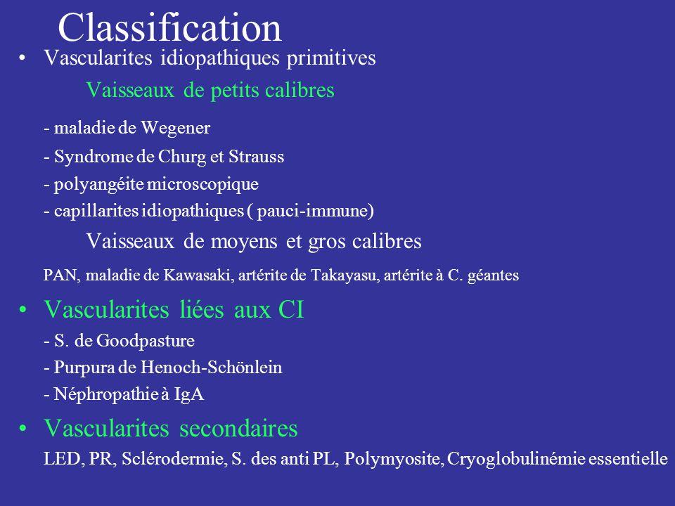 Classification Vascularites idiopathiques primitives Vaisseaux de petits calibres - maladie de Wegener - Syndrome de Churg et Strauss - polyangéite mi