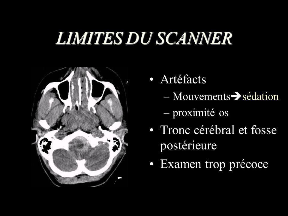 LIMITES DU SCANNER Artéfacts –Mouvements sédation –proximité os Tronc cérébral et fosse postérieure Examen trop précoce