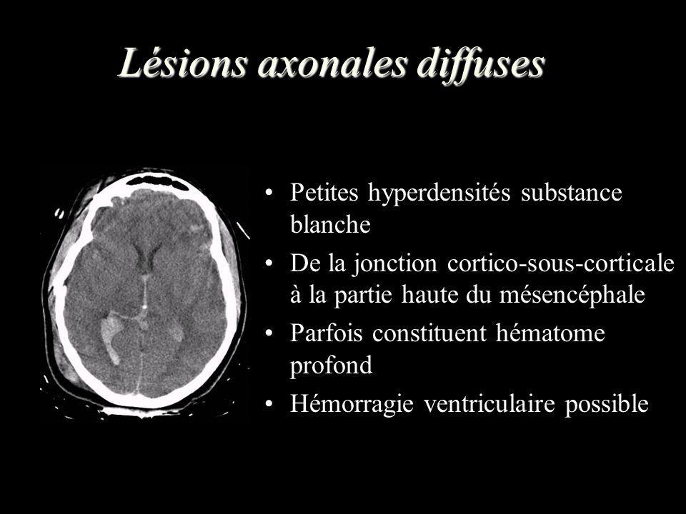 Lésions axonales diffuses Petites hyperdensités substance blanche De la jonction cortico-sous-corticale à la partie haute du mésencéphale Parfois cons