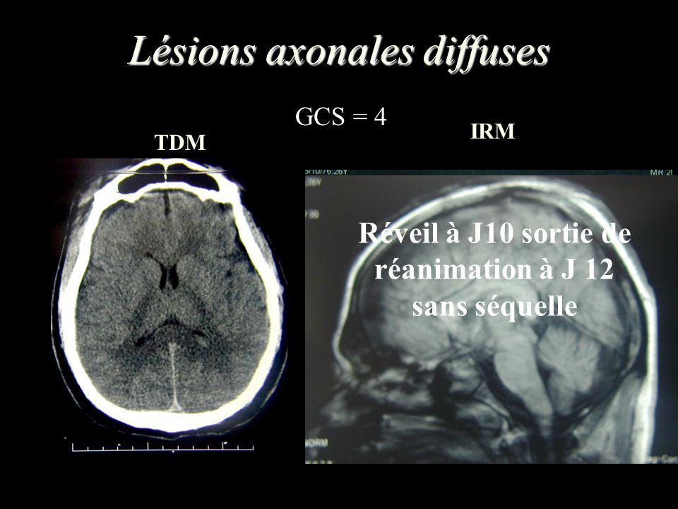 Lésions axonales diffuses TDM IRM GCS = 4 Orages neurovégétatif avec OPA neurogénique Réveil à J10 sortie de réanimation à J 12 sans séquelle