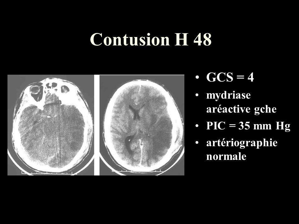 Contusion H 48 GCS = 4 mydriase aréactive gche PIC = 35 mm Hg artériographie normale