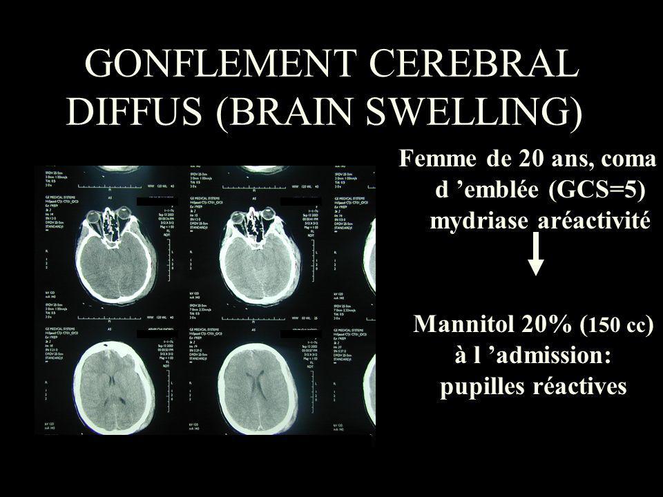 GONFLEMENT CEREBRAL DIFFUS (BRAIN SWELLING)) Femme de 20 ans, coma d emblée (GCS=5) mydriase aréactivité Mannitol 20% ( 150 cc ) à l admission: pupill
