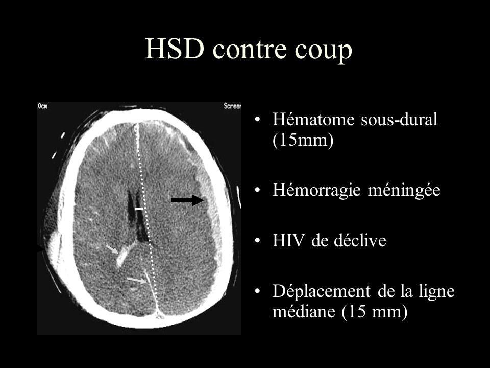 HSD contre coup Hématome sous-dural (15mm) Hémorragie méningée HIV de déclive Déplacement de la ligne médiane (15 mm)