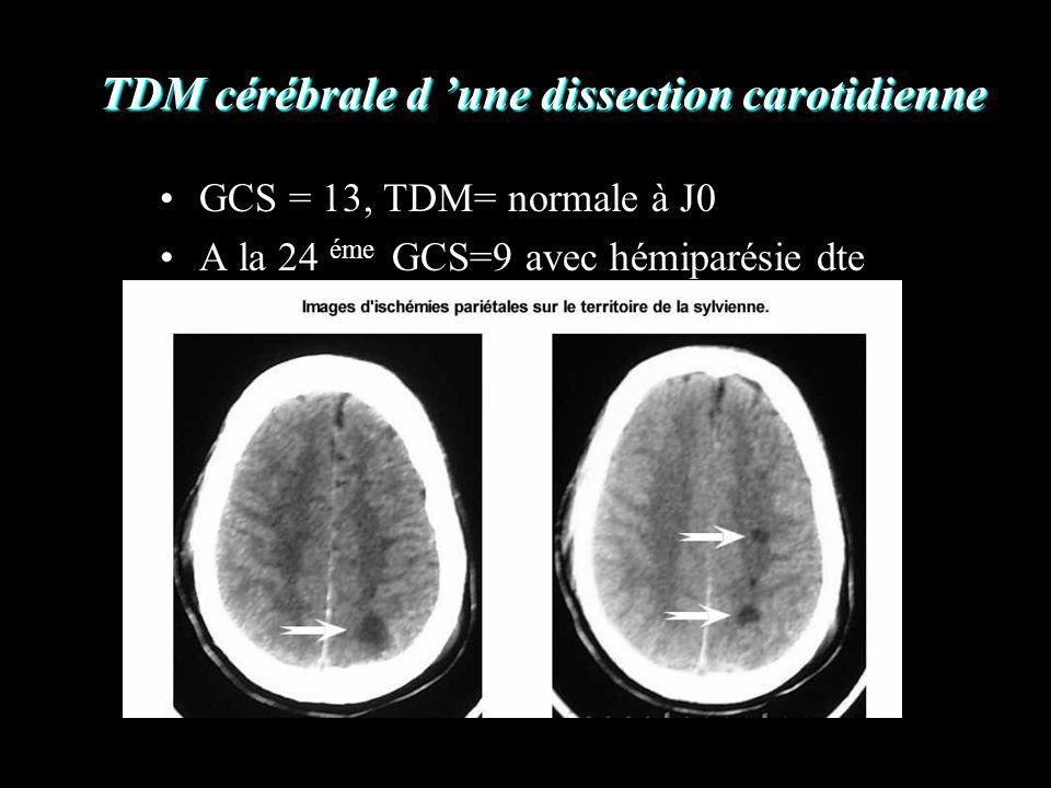 TDM cérébrale d une dissection carotidienne GCS = 13, TDM= normale à J0 A la 24 éme GCS=9 avec hémiparésie dte