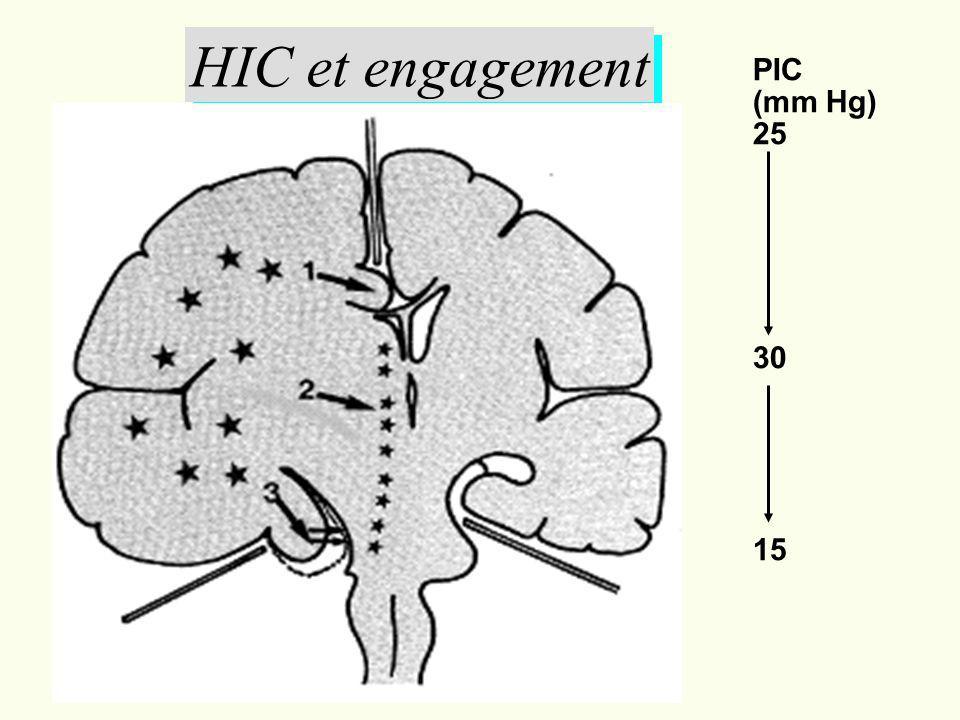 HIC et engagement PIC (mm Hg) 25 30 15