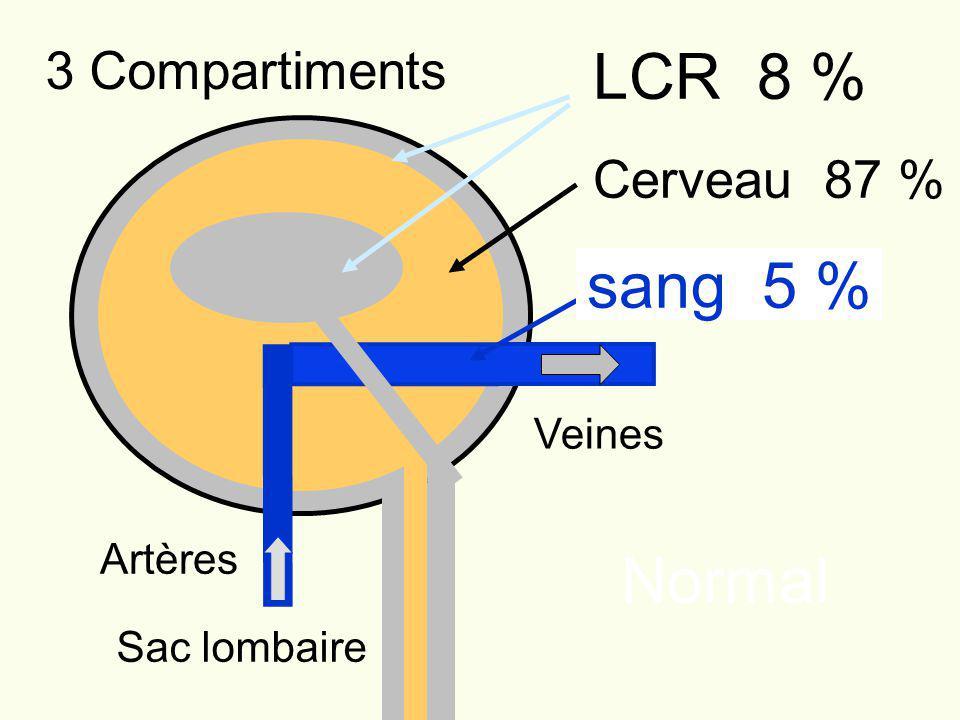 LCR 8 % Cerveau 87 % Artères Veines Sac lombaire Normal sang 5 % 3 Compartiments