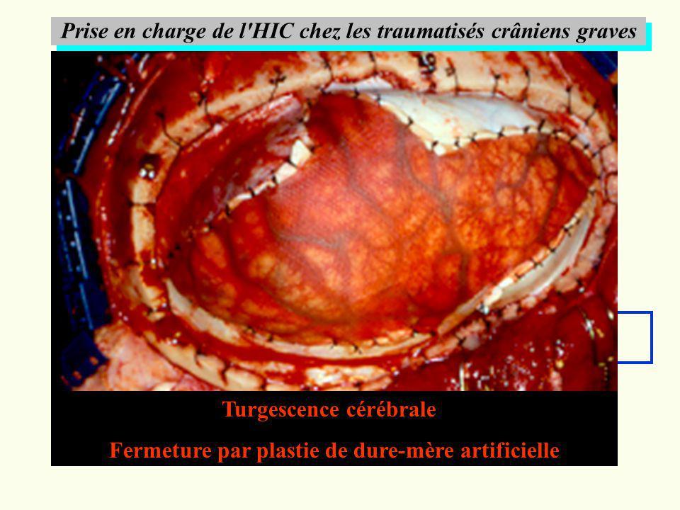 Prise en charge de l'HIC chez les traumatisés crâniens graves HIC réfractaire Craniectomie décompressive TDM cérébrale Turgescence cérébrale Fermeture