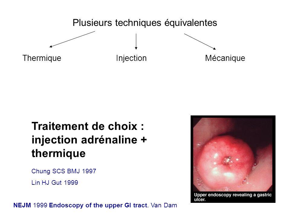 Traitement de choix : injection adrénaline + thermique Plusieurs techniques équivalentes ThermiqueInjectionMécanique NEJM 1999 Endoscopy of the upper