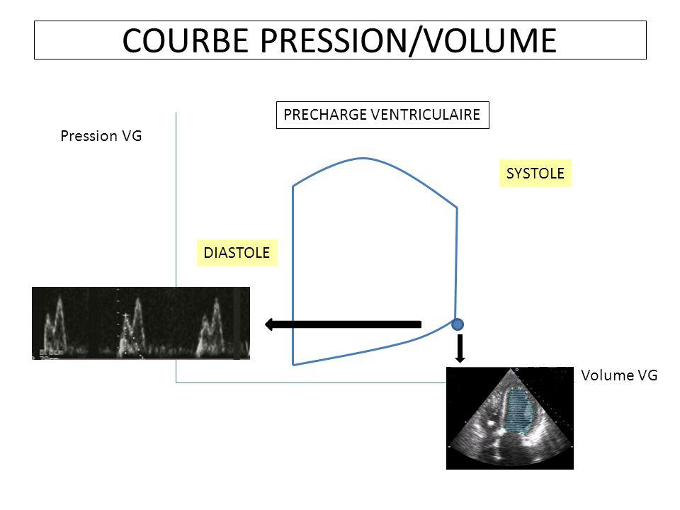 COURBE PRESSION/VOLUME Volume VG Pression VG PRECHARGE VENTRICULAIRE SYSTOLE DIASTOLE