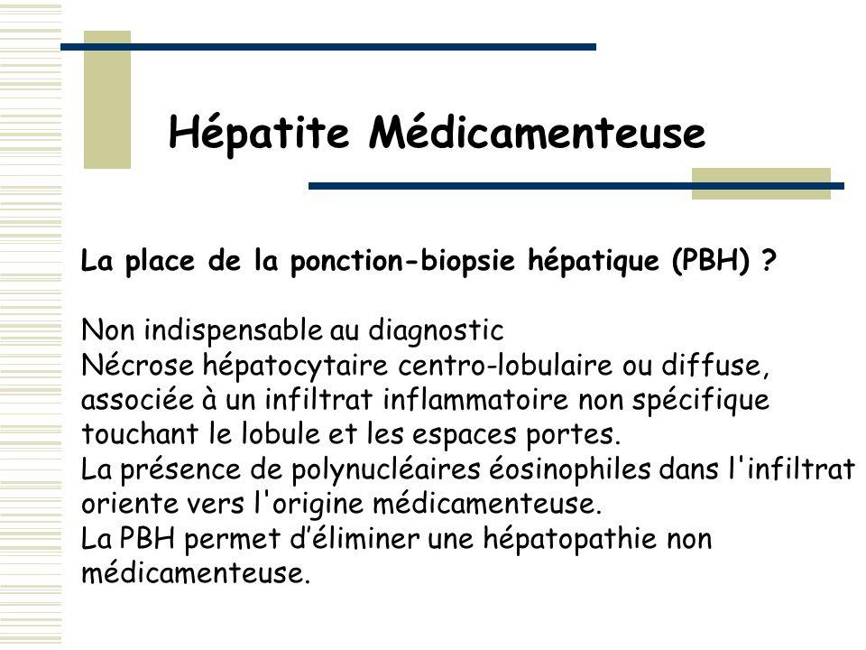 La place de la ponction-biopsie hépatique (PBH) ? Non indispensable au diagnostic Nécrose hépatocytaire centro-lobulaire ou diffuse, associée à un inf