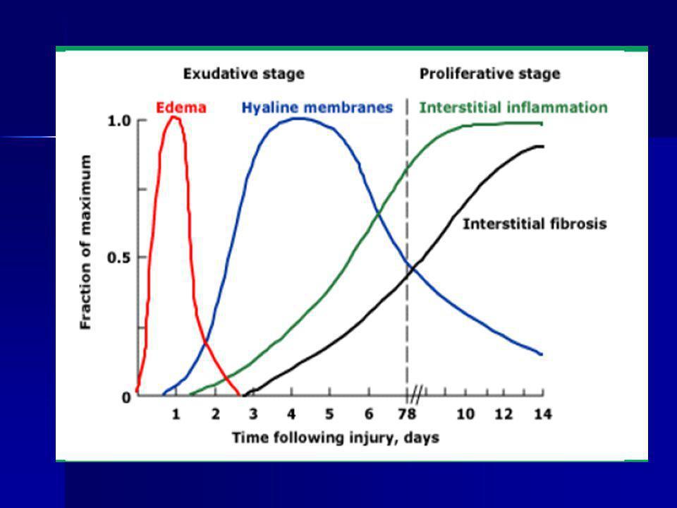 Phase initiale exsudative : Phase initiale exsudative : Destruction histologique de la barrière alvéolo-capillaire.