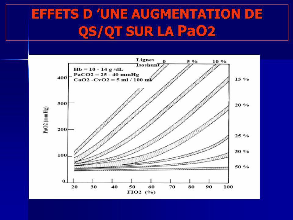 EFFETS D UNE AUGMENTATION DE QS/QT SUR LA PaO 2 100 200 2030405060708090100