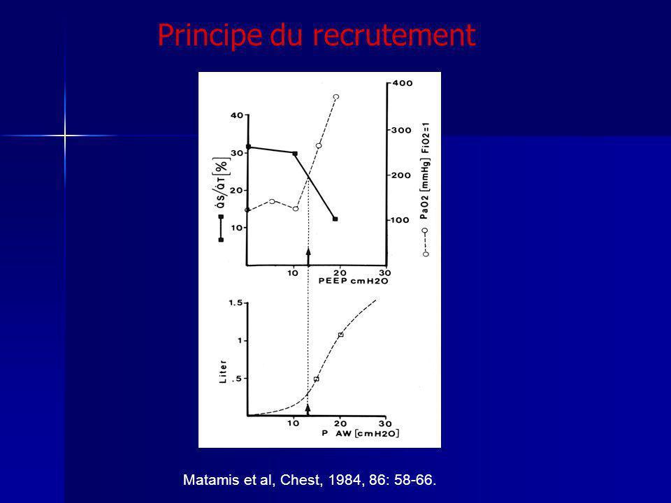 Matamis et al, Chest, 1984, 86: 58-66. Principe du recrutement