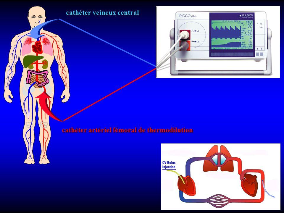 cathéter veineux central cathéter artériel fémoral de thermodilution