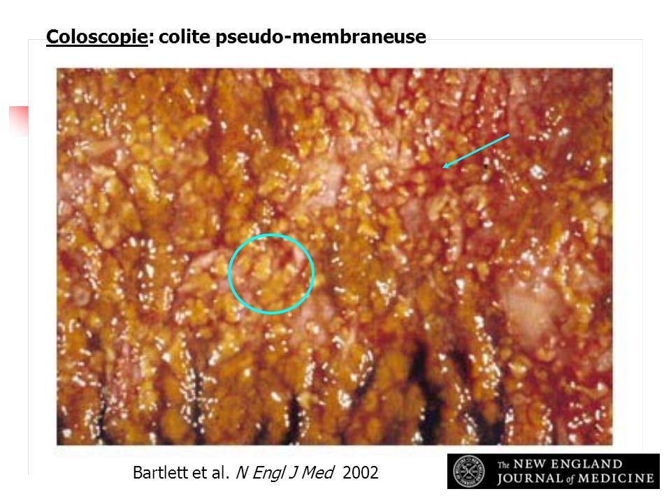 Coloscopie: colite pseudo-membraneuse Bartlett et al. N Engl J Med 2002