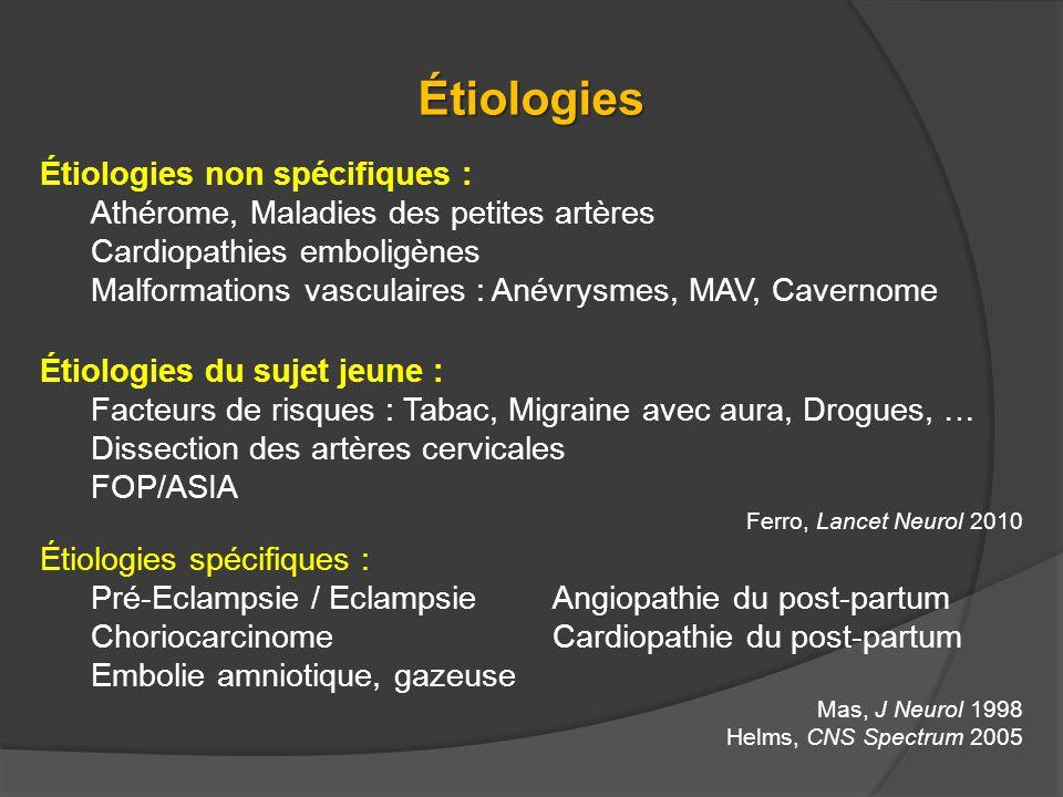 Étiologies Étiologies non spécifiques : Athérome, Maladies des petites artères Cardiopathies emboligènes Malformations vasculaires : Anévrysmes, MAV,