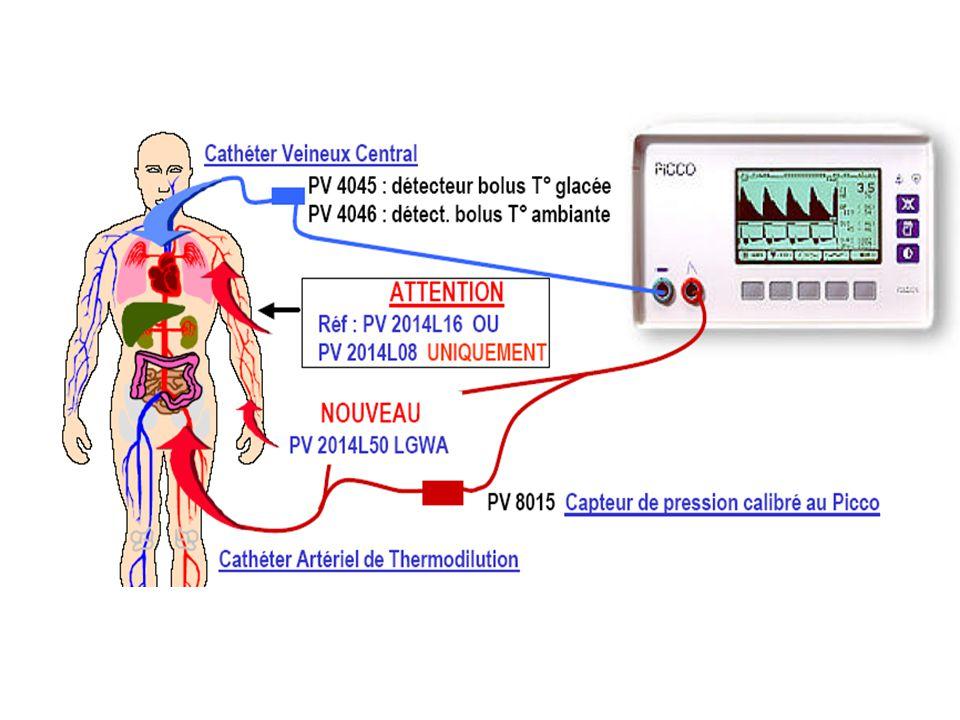 Evaluation par rapport aux méthodes de référence: thermodilution artérielle pulmonaire, méthode de Fick, double dilution (Dye).