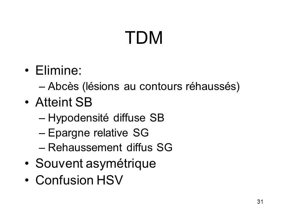 31 TDM Elimine: –Abcès (lésions au contours réhaussés) Atteint SB –Hypodensité diffuse SB –Epargne relative SG –Rehaussement diffus SG Souvent asymétr