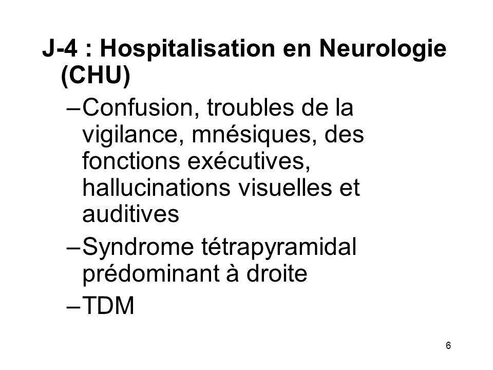 6 J-4 : Hospitalisation en Neurologie (CHU) –Confusion, troubles de la vigilance, mnésiques, des fonctions exécutives, hallucinations visuelles et aud