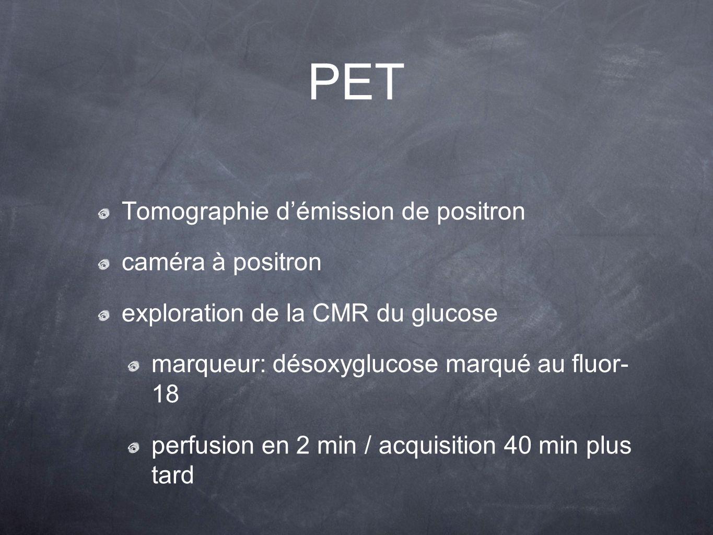 Tomographie démission de positron caméra à positron exploration de la CMR du glucose marqueur: désoxyglucose marqué au fluor- 18 perfusion en 2 min /
