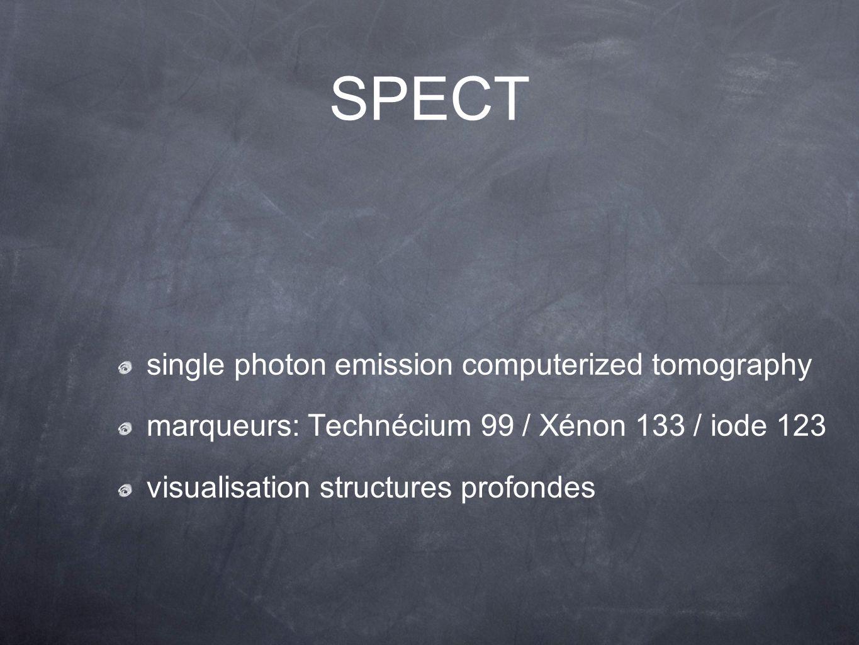 single photon emission computerized tomography marqueurs: Technécium 99 / Xénon 133 / iode 123 visualisation structures profondes