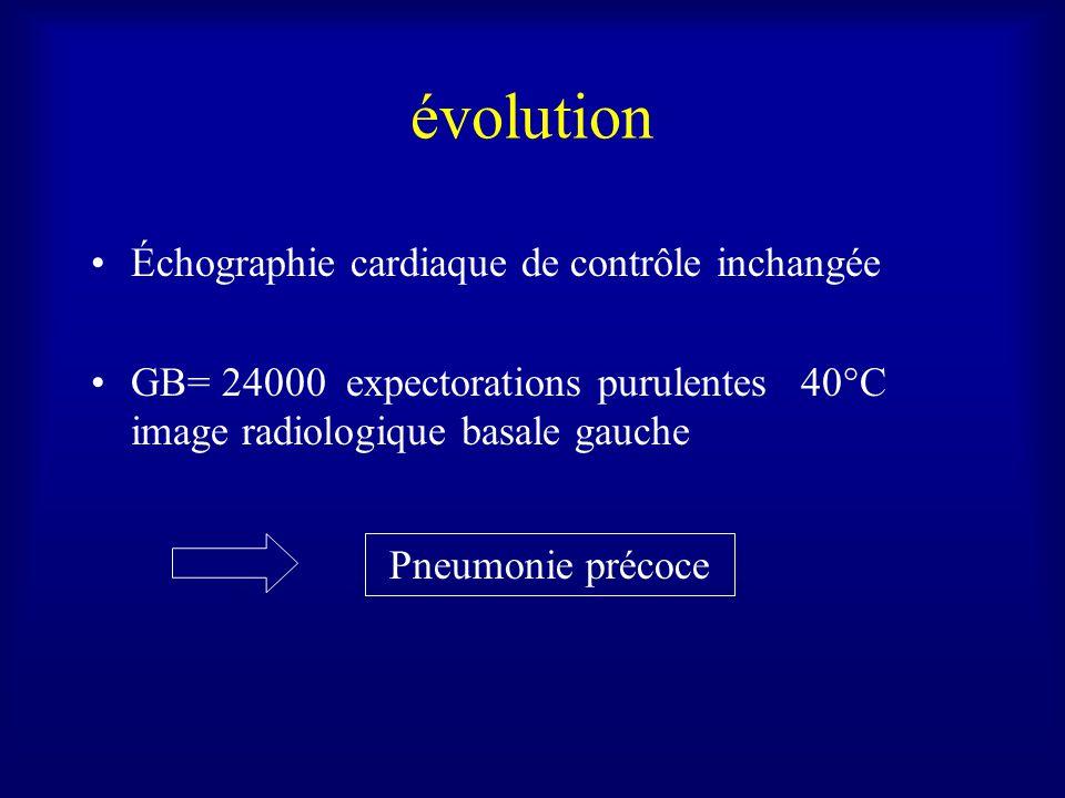 évolution Échographie cardiaque de contrôle inchangée GB= 24000 expectorations purulentes 40°C image radiologique basale gauche Pneumonie précoce