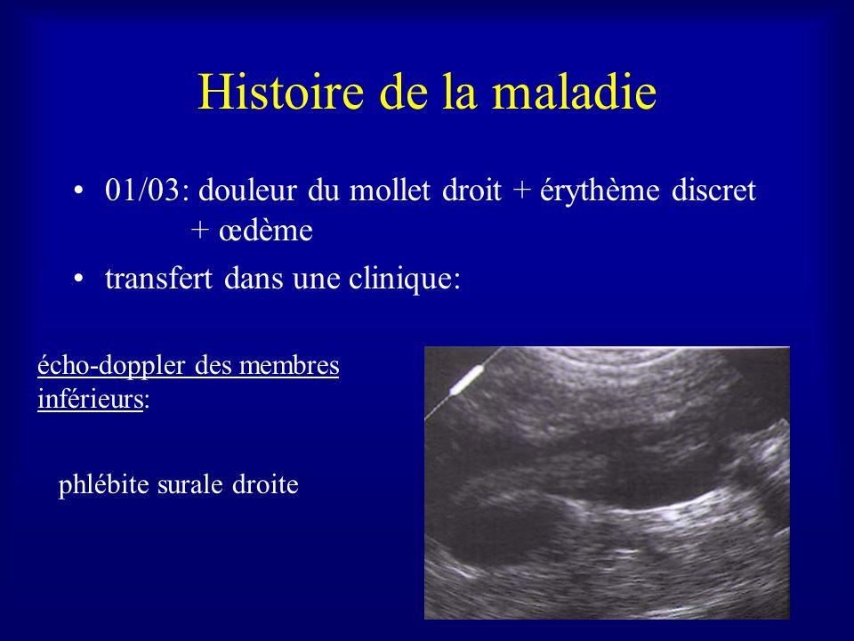Histoire de la maladie 01/03: douleur du mollet droit + érythème discret + œdème transfert dans une clinique: écho-doppler des membres inférieurs: phlébite surale droite