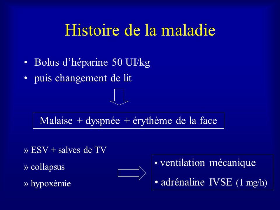 Histoire de la maladie Bolus dhéparine 50 UI/kg puis changement de lit Malaise + dyspnée + érythème de la face » ESV + salves de TV » collapsus » hypoxémie ventilation mécanique adrénaline IVSE (1 mg/h)