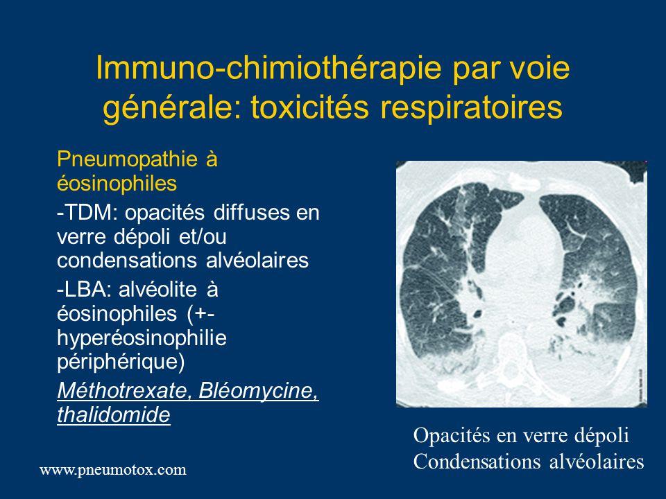 Immuno-chimiothérapie par voie générale: toxicités respiratoires Pneumopathie à éosinophiles -TDM: opacités diffuses en verre dépoli et/ou condensatio