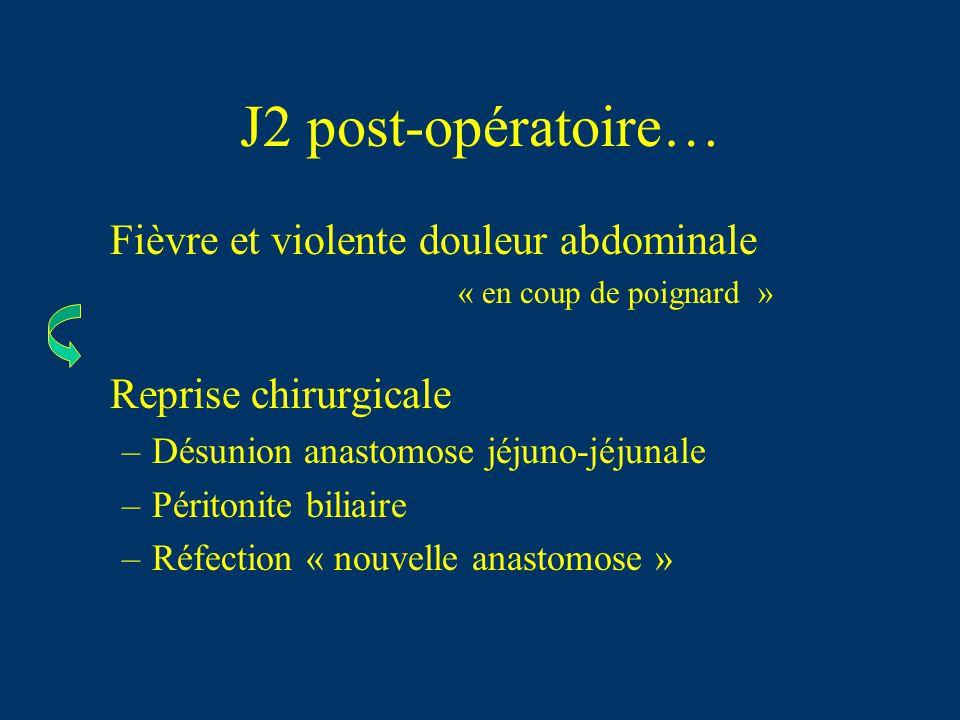 J2 post-opératoire… Fièvre et violente douleur abdominale « en coup de poignard » Reprise chirurgicale –Désunion anastomose jéjuno-jéjunale –Péritonit