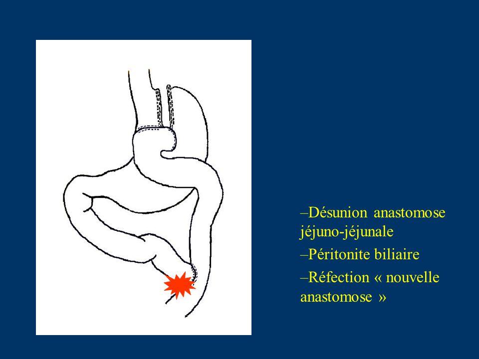 J4 post-opératoire… Sepsis et détresse respiratoire « Pneumopathie nosocomiale » Mutation en Réanimation –IOT/VA –Traitement Antibiotique: Claventin® puis Tienam-Ciflox® –Prélèvement distal protégé: Acinetobacter