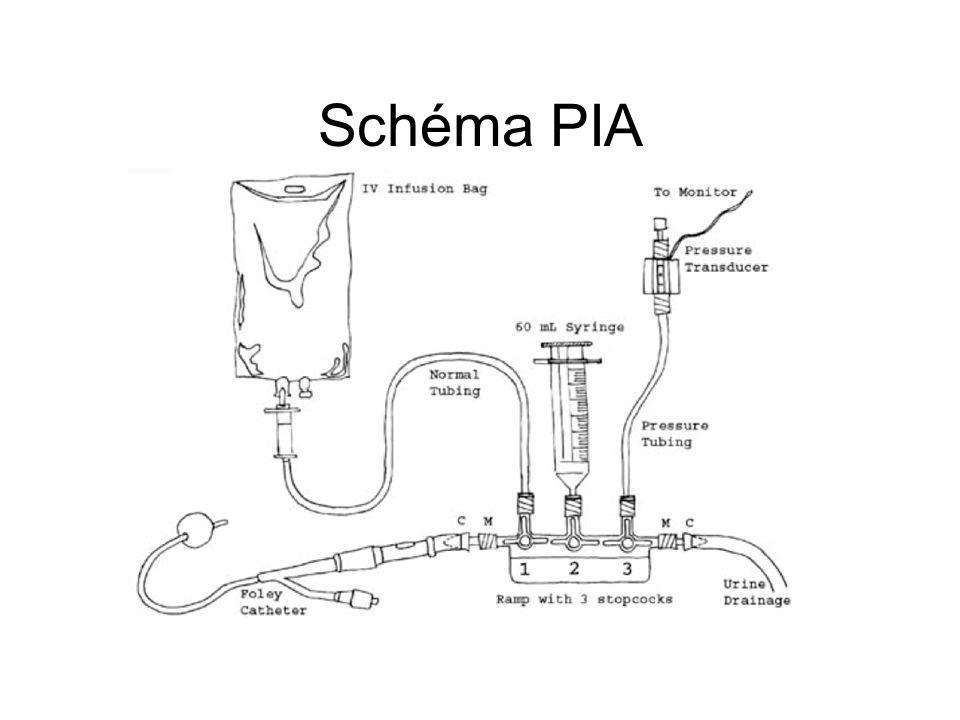 Schéma PIA