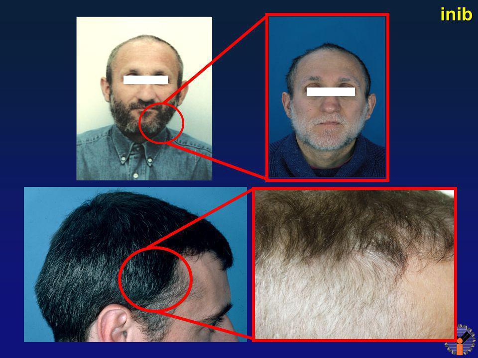 Reversible Hair Depigmentation inib