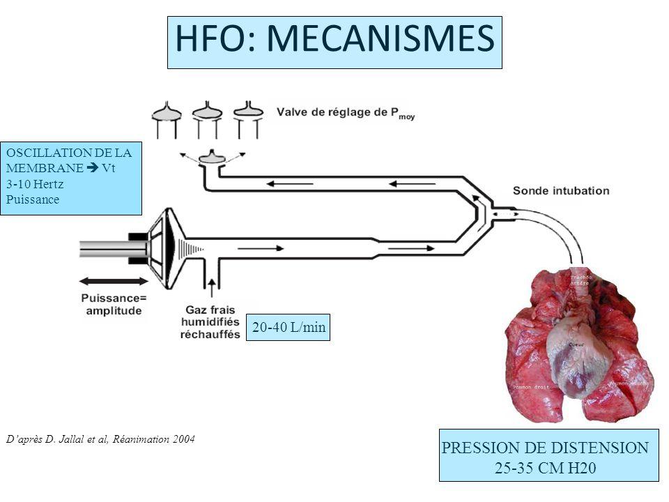 20- 15- 10- 5- 0- ------------------------Paw PEP -----------------------Paw ----------PIC ---------PIC VMCHFO Pression cm H2O HFO: MECANISMES