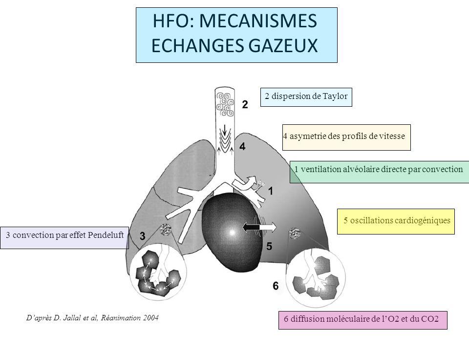 TRAVAUX CLINIQUES HFO = mode de ventilation dans le SDRA Technique alternative, « rescue ventilation » HFO versus VMC.