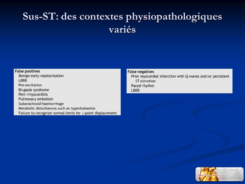 Sus-ST: des contextes physiopathologiques variés
