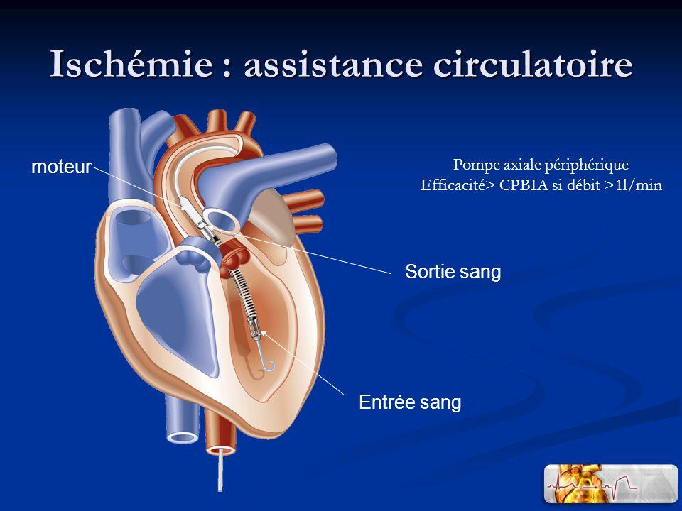 Ischémie : assistance circulatoire moteur Sortie sang Entrée sang Pompe axiale périphérique Efficacité> CPBIA si débit >1l/min