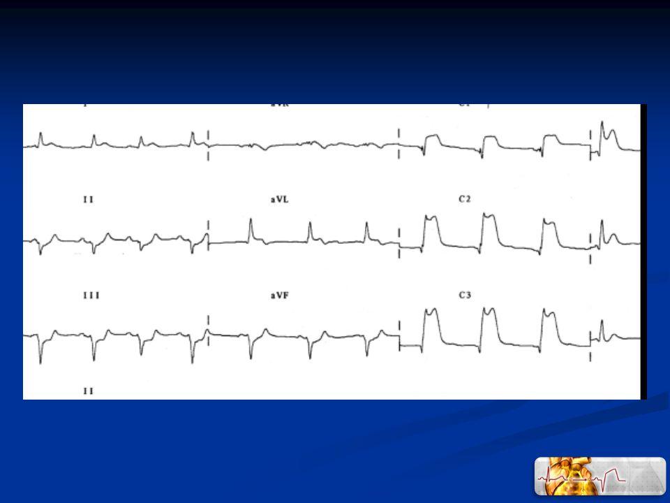 Intérêt ++ de lanalyse combinée de lECG et troponine en réa Etude prospective monocentrique – réa polyvalente 115 patients consécutifs sur 8 semaines – 14 pts sans ECG et ou troponine 273 ECG – 259 dosages de troponine T Interprétation par 2 réanimateurs non cardiologues – 5 à 7 ans dexpérience Perception et interprétation : Diagnostic dischémie myocardique analyse T, ST, Q, BBG Reproductibilité intra-observateur : faible à modérée Reproductibilité inter-obervateur : faible augmente avec troponine