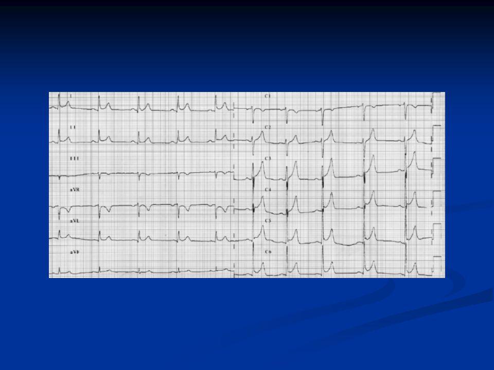 La contre-pulsion intra-aortique