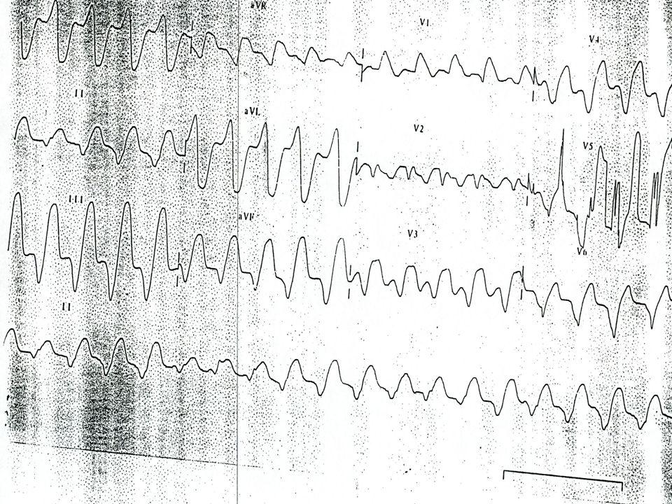 Ischémie myocardique en réa Symptomatologie atypique Symptomatologie atypique Utilisation combinée ECG et biomarqueurs Utilisation combinée ECG et biomarqueurs Patients polypathologiques - Sous-populations à risque Patients polypathologiques - Sous-populations à risque Stratification du risque Stratification du risque Optimisation contrôle glycémique Optimisation contrôle glycémique