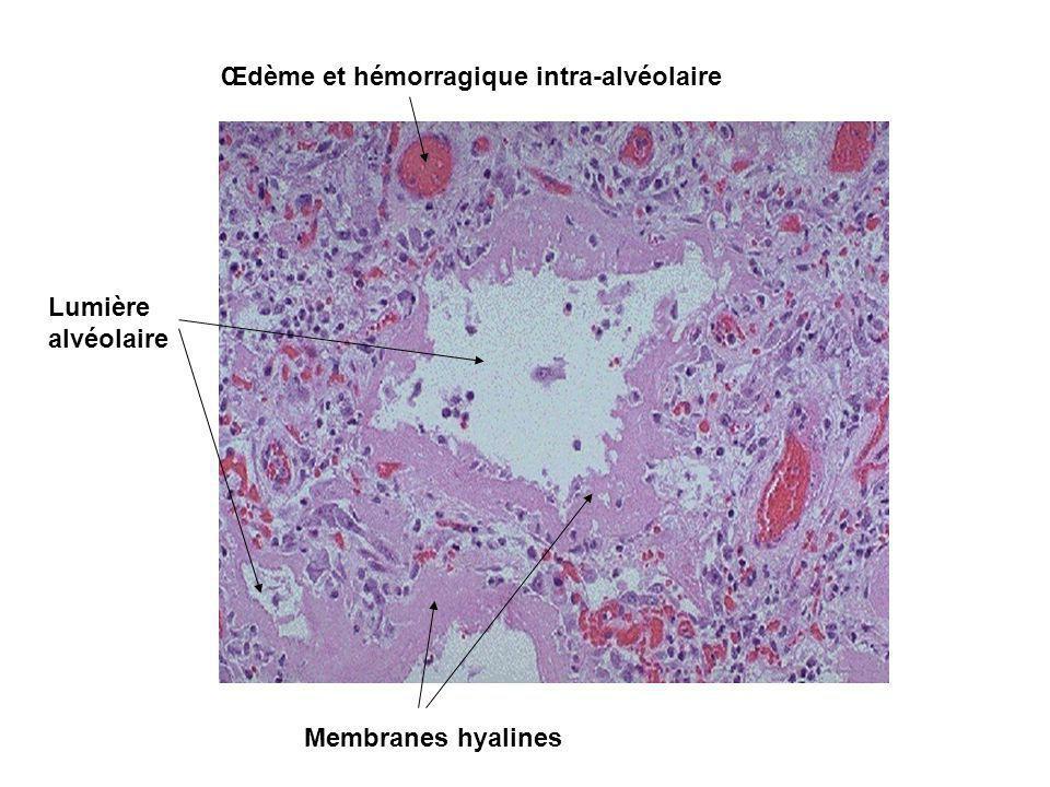 Phase proliférative I Organisation des exsudats dans les alvéoles et dans linterstitium + fibrose Macroscopie : poumons lourds, durs