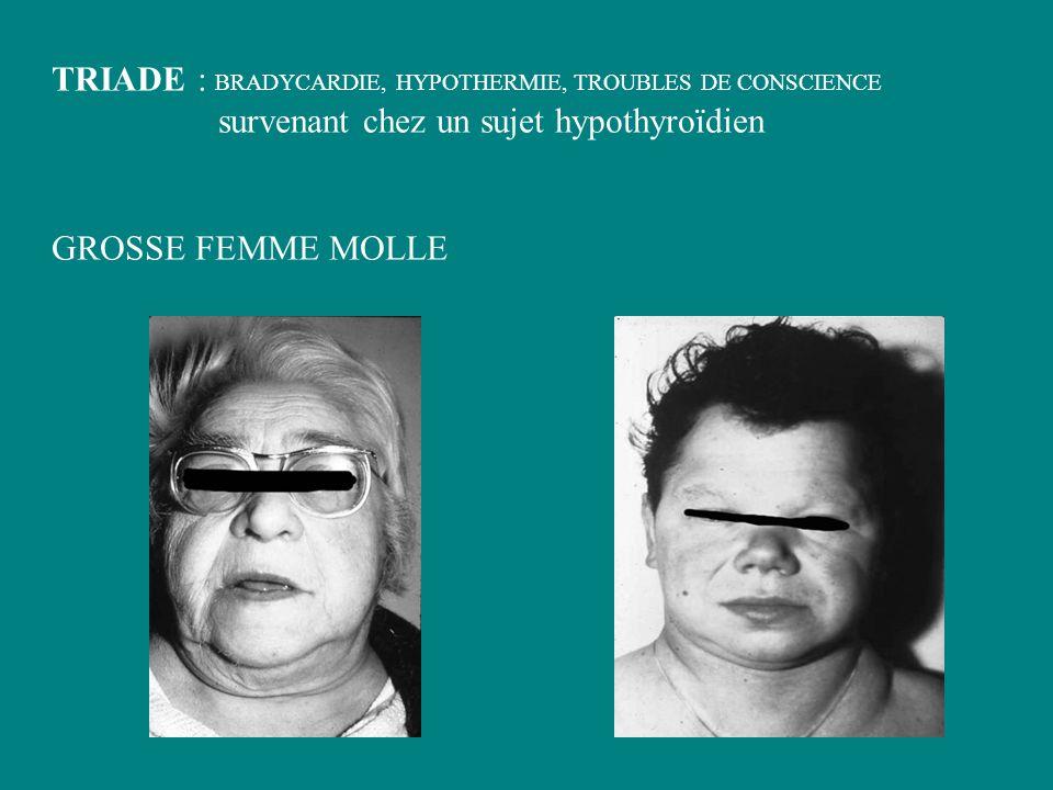 TRIADE : BRADYCARDIE, HYPOTHERMIE, TROUBLES DE CONSCIENCE survenant chez un sujet hypothyroïdien GROSSE FEMME MOLLE