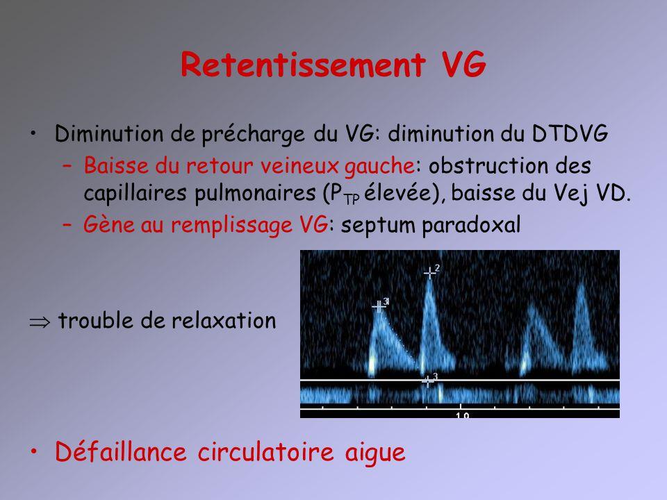 Retentissement VG Diminution de précharge du VG: diminution du DTDVG –Baisse du retour veineux gauche: obstruction des capillaires pulmonaires (P TP é