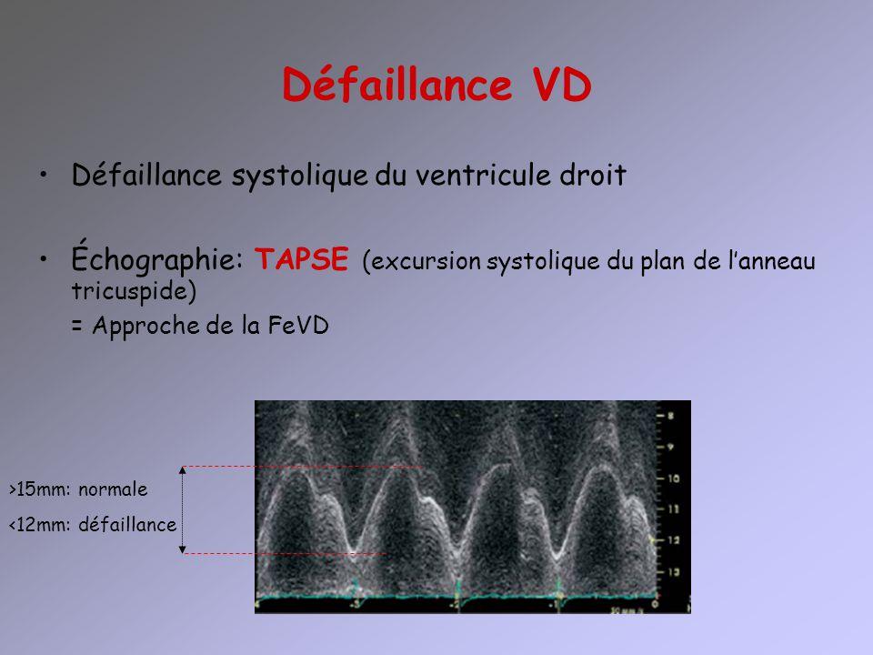 Défaillance VD Défaillance systolique du ventricule droit Échographie: TAPSE (excursion systolique du plan de lanneau tricuspide) = Approche de la FeV