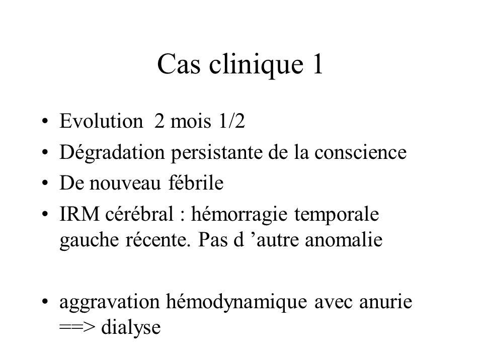 Cas clinique 1 Evolution 2 mois 1/2 Dégradation persistante de la conscience De nouveau fébrile IRM cérébral : hémorragie temporale gauche récente.