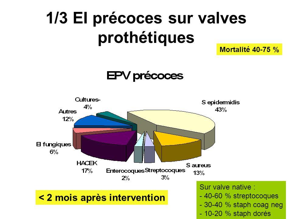 1/3 EI précoces sur valves prothétiques < 2 mois après intervention Sur valve native : - 40-60 % streptocoques - 30-40 % staph coag neg - 10-20 % stap