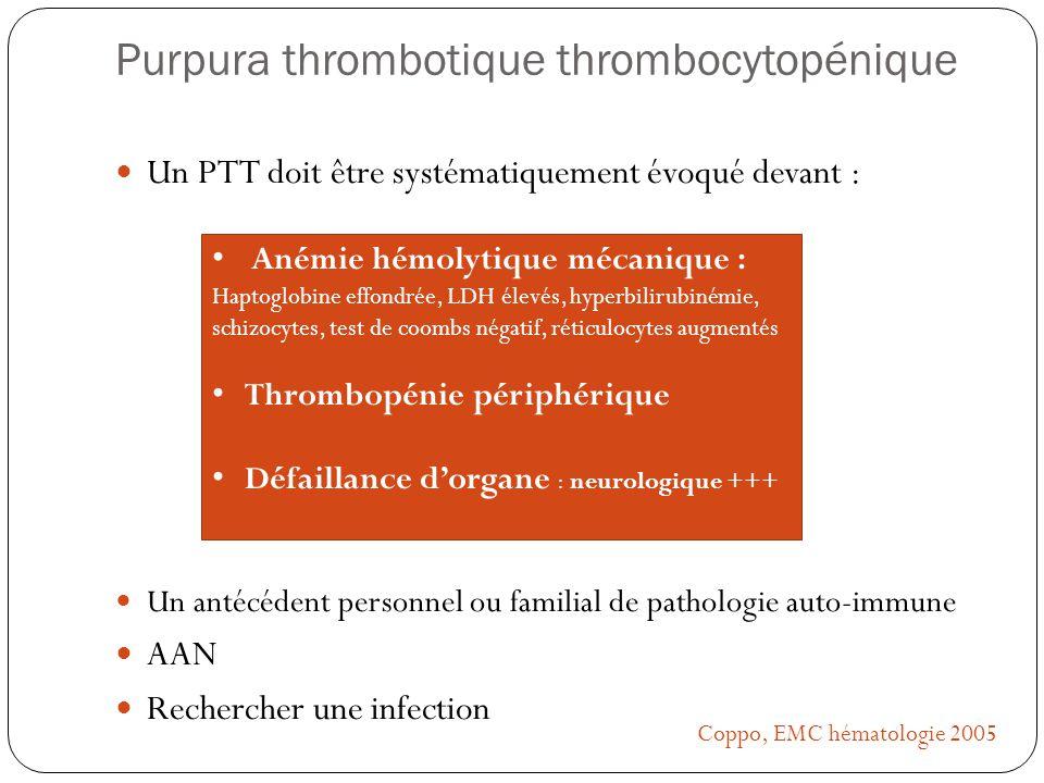 Purpura thrombotique thrombocytopénique Un PTT doit être systématiquement évoqué devant : Un antécédent personnel ou familial de pathologie auto-immun