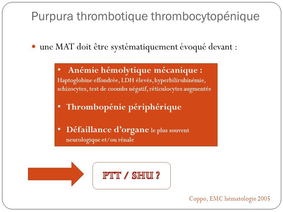 Purpura thrombotique thrombocytopénique une MAT doit être systématiquement évoqué devant : Anémie hémolytique mécanique : Haptoglobine effondrée, LDH