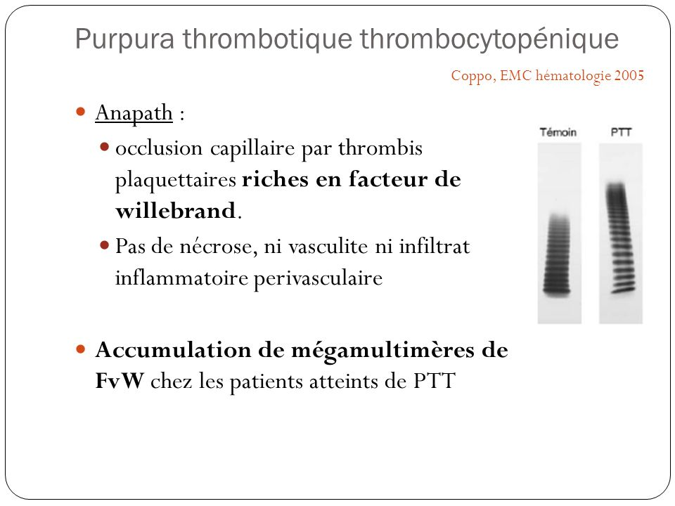 Purpura thrombotique thrombocytopénique Anapath : occlusion capillaire par thrombis plaquettaires riches en facteur de willebrand. Pas de nécrose, ni